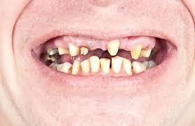Gebiss mit schlechten Zähnen